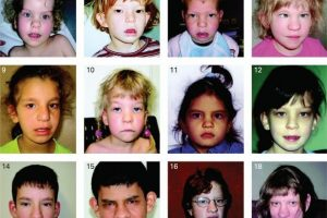 Face2Gene and syndrome recognition by computers- photographs needed, try Facebook?